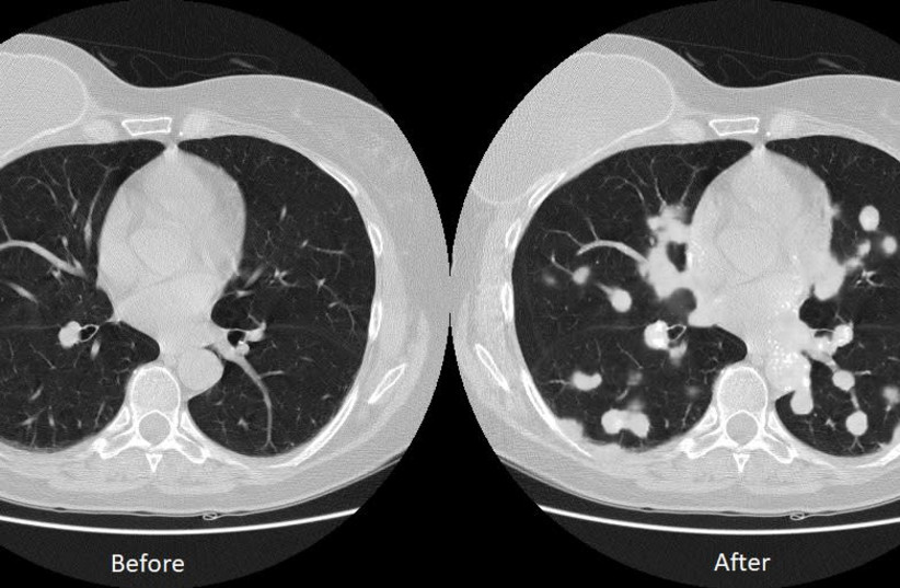Lung cancer maliciously inserted into image in Ben-Gurion University of the Negev study (photo credit: BGU)