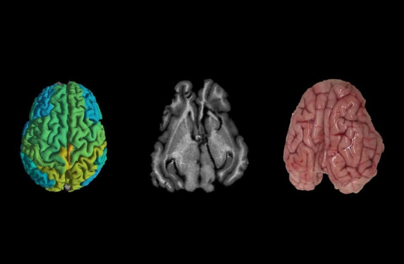 Technion discovers how to reduce cognitive damage from brain disease