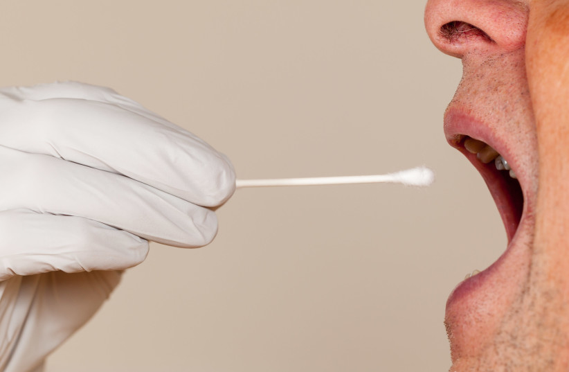 An illustrative image of a mouth swab for DNA testing (photo credit: INGIMAGE)