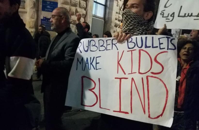 Jerusalem mayor visits east Jerusalem boy who was shot in eye