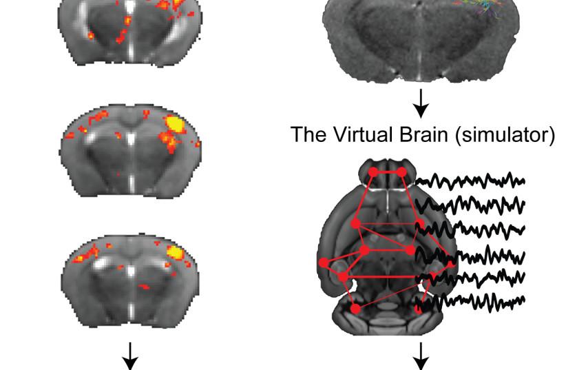 Image result for the virtual brain simulator