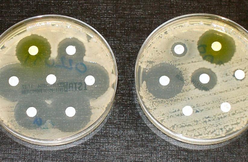 Ben-Gurion U. researchers hit back at antibiotic-resistant infections