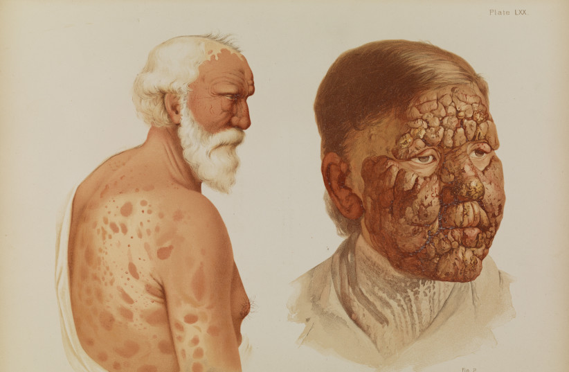 LEPROSY, PLATE LXX from Prince Albert Morrow, 1889 (photo credit: Wikimedia Commons)