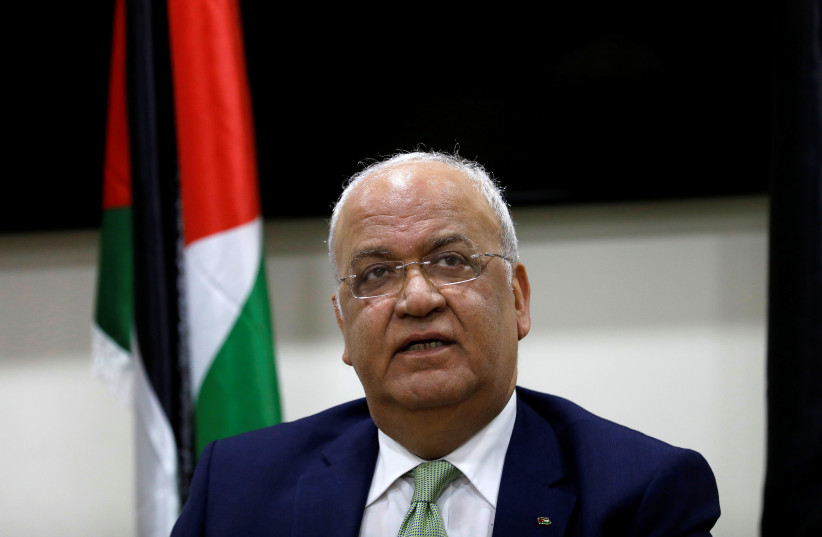 Erekat's Hadassah care must be top priority for Israel – comment