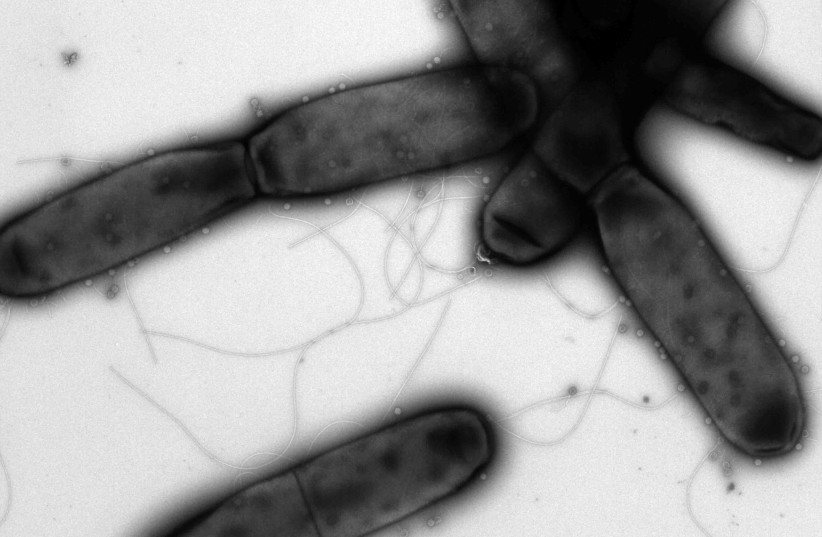 Enzymes in bacteria could help fight coronavirus - Weizmann Institute