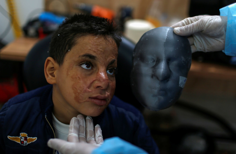 Gaza burn victims get 3D-printer face masks made close to home (photo credit: REUTERS)