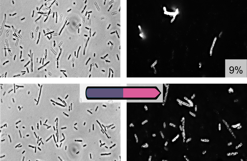 "Fluorescence microscope image: The upper image shows the expression of an outer-surface sugar on abacterial culture that expresses all subpopulations, and the two lower images show a bacterial population that expresses only the ""pink"" subpopulation, where the same outer-surface sugar is more promine (photo credit: TECHNION)"
