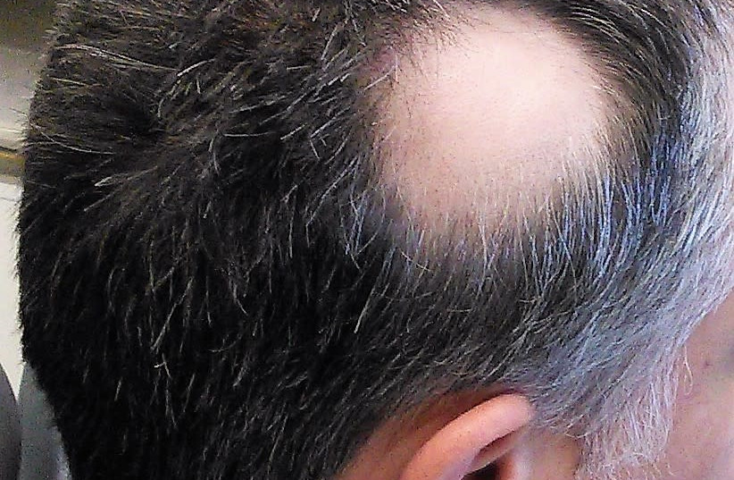 Hair loss caused by alopecia areata. (photo credit: Wikimedia Commons)