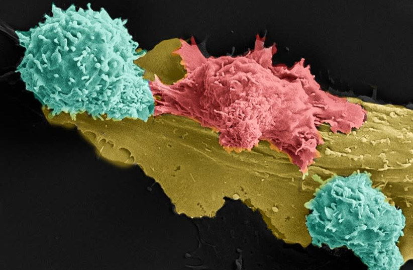 Two genetically engineered T Cells (light green) attacking a cancer cell in red. (photo credit: TILDA BARLIYA/ASTAR SHAMUL/CYRILLE COHEN)