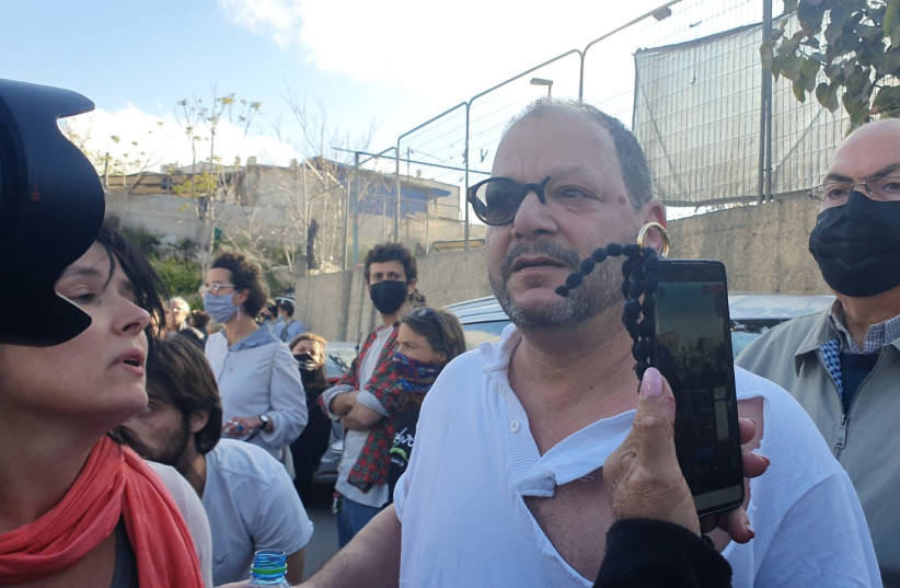 Joint List MK Ofer Cassif after his brutal attack by police in Jerusalem, April 9, 2021.  (photo credit: Courtesy)