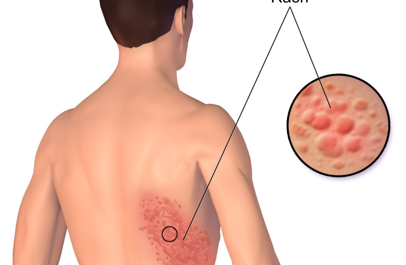 A rash from herpes zoster [Illustrative]. (photo credit: Wikimedia Commons)