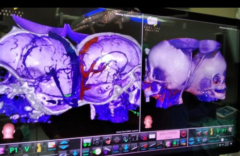 Model virtuální reality chirurgického divadla (kredit: Soroka University Medical Center)