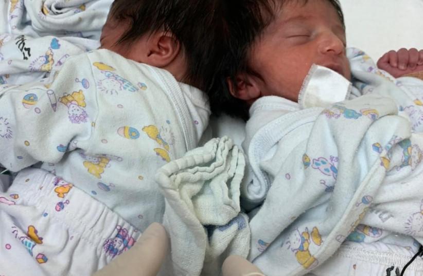 Dvojčata měla vzácný stav nazývaný kraniofaciální dvojčata.  (kredit: Soroka University Medical Center)