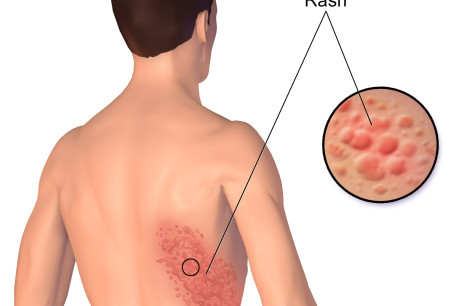 A rash from herpes zoster [Illustrative].