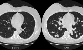 Lung cancer maliciously inserted into image in Ben-Gurion University of the Negev study