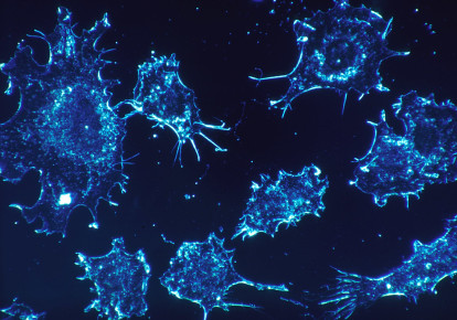 Cancer cells [illustrative] (photo credit: PIXABAY)