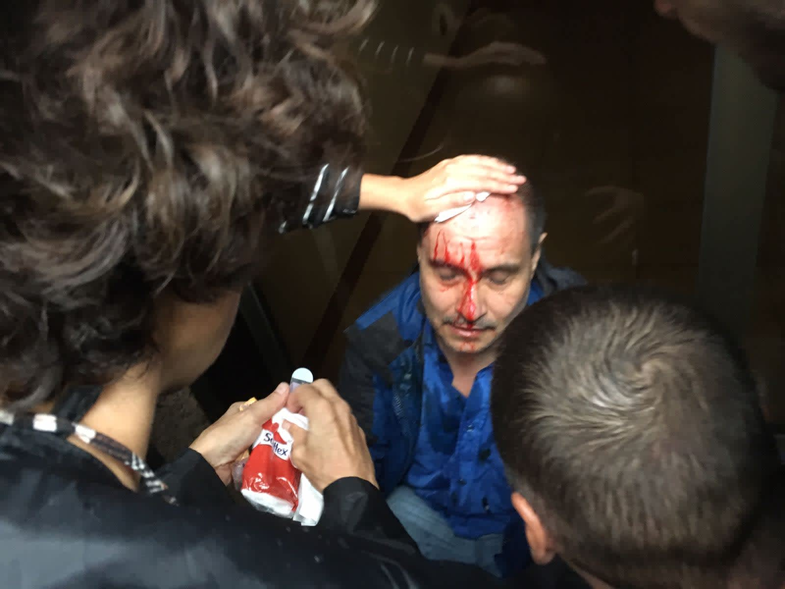 A Catalan man injured by a rubber bullet (credit: MK Ksenia Svetlova)