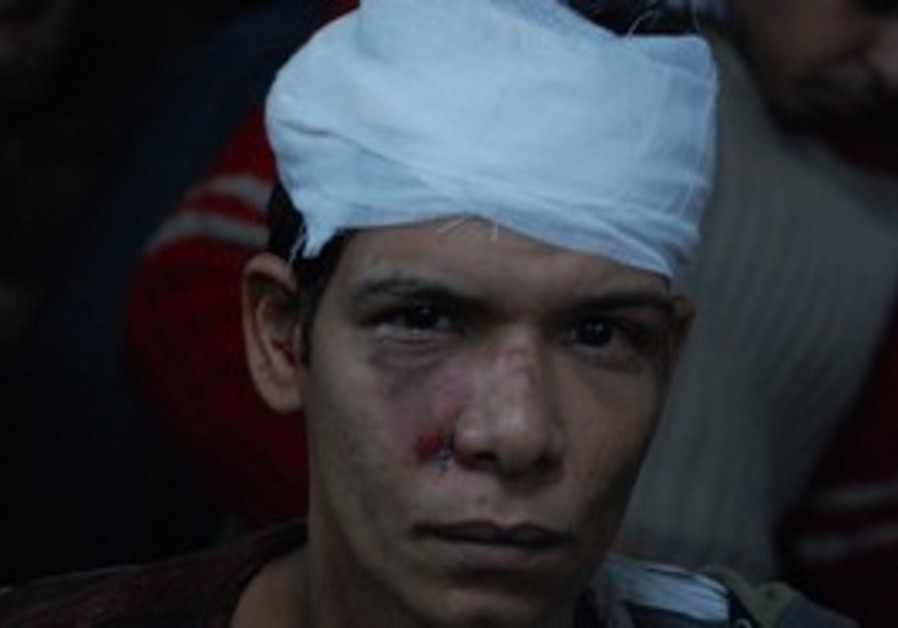 Demonstrator injured in Cairo violence