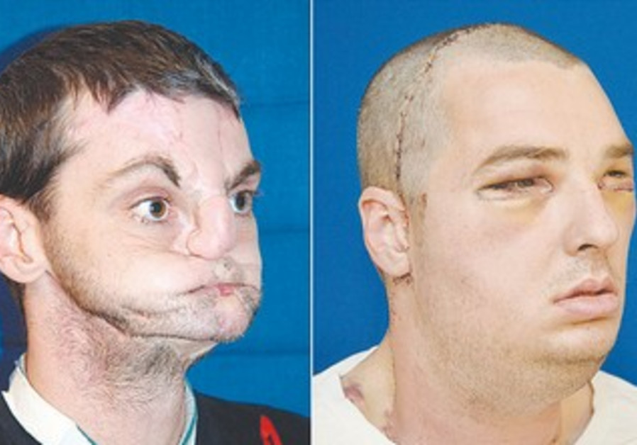 Richard Norris after surgery, and with new face