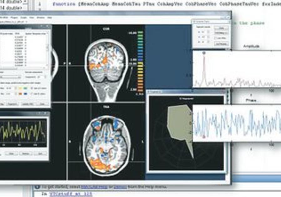 FUNCTIONAL MAGNETIC resonance imaging.
