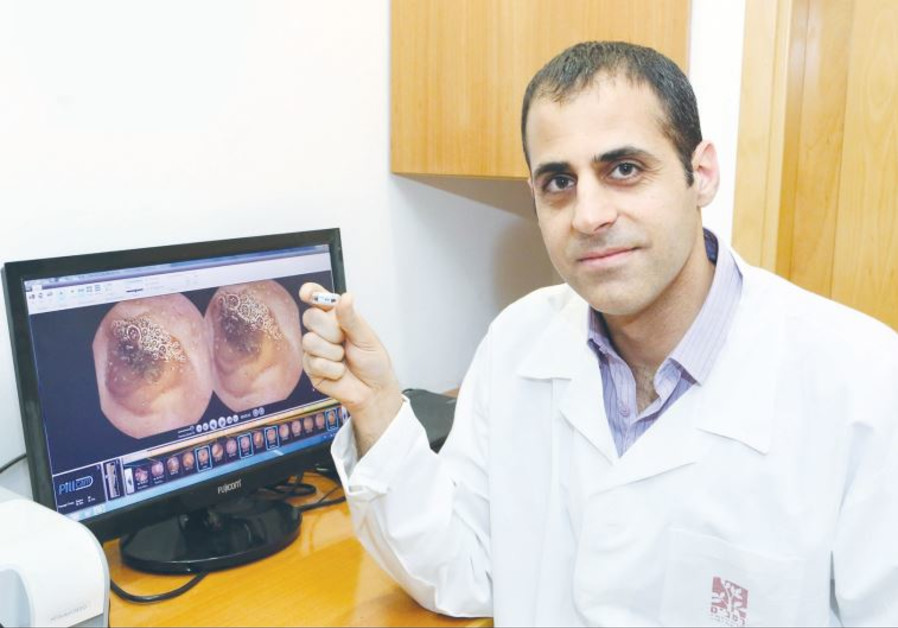 DR. ITAI MAZA shows off Given Imaging's colorectal cancer Pillcam