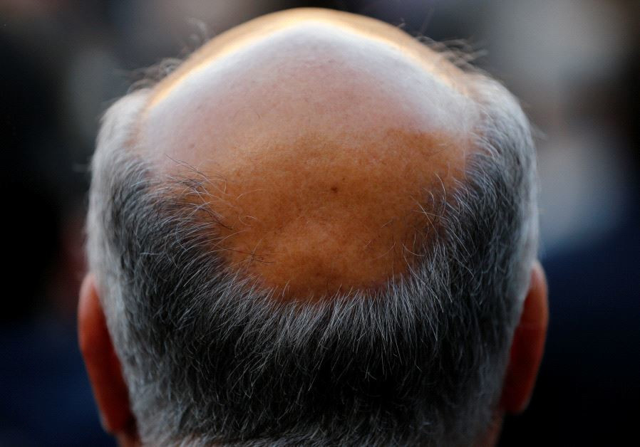 A man with baldness is seen in Seville, southern Spain